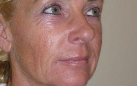 Facelifting 1c Vorher Bild Dr Sylvester M Maas