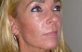 Facelifting 1h Nachher Bild Dr Sylvester M Maas