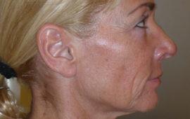 Facelifting 1e Vorher Bild Dr Sylvester M Maas