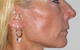 Facelifting 1j Nachher Bild Dr Sylvester M Maas
