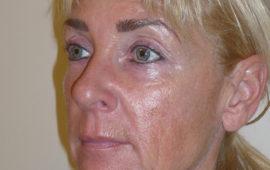 Facelifting 1b Vorher Bild Dr Sylvester M Maas