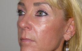 Facelifting 1b Nachher Bild Dr Sylvester M Maas