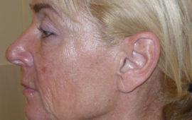 Facelifting 1d Vorher Bild Dr Sylvester M Maas