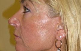 Facelifting 1i Nachher Bild Dr Sylvester M Maas