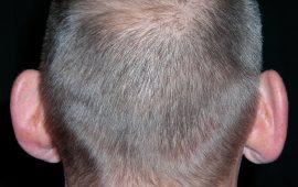 Abstehende Ohren Korrektur 1a vorher Bild Dr Sylvester M Maas