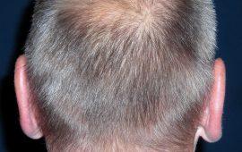 Abstehende Ohren Korrektur 1b nachher Bild Dr Sylvester M Maas