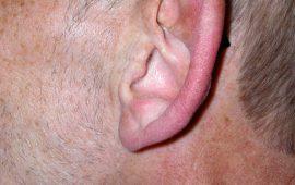 Abstehende Ohren Korrektur 1c vorher Bild Dr Sylvester M Maas