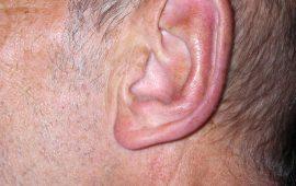 Abstehende Ohren Korrektur 1d nachher Bild Dr Sylvester M Maas