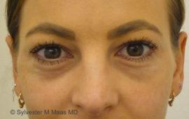 Augenringe Unterspritzung 1a Vorher MAAS-AeSTHETICS.ch