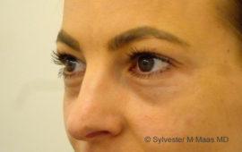 Augenringe Unterspritzung 1b Vorher MAAS-AeSTHEICS.ch