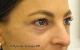 Augenringe Unterspritzung 1c Vorher MAAS-AeSTHETICS.ch