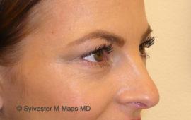 Augenringe Unterspritzung 1f Nachher MAAS-AeSTHETICS.ch-