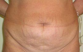 Bauchdeckenstraffung 1a vorher Bild Dr Sylvester M Maas