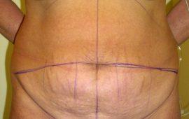 Bauchdeckenstraffung 1c vorher Bild Dr Sylvester M Maas