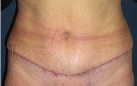 Bauchdeckenstraffung 1d nachher Bild Dr Sylvester M Maas