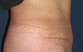 Bauchdeckenstraffung 1e nachher Bild Dr Sylvester M Maas