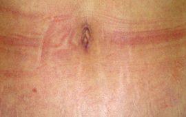 Bauchdeckenstraffung 1f nachher Bild Dr Sylvester M Maas