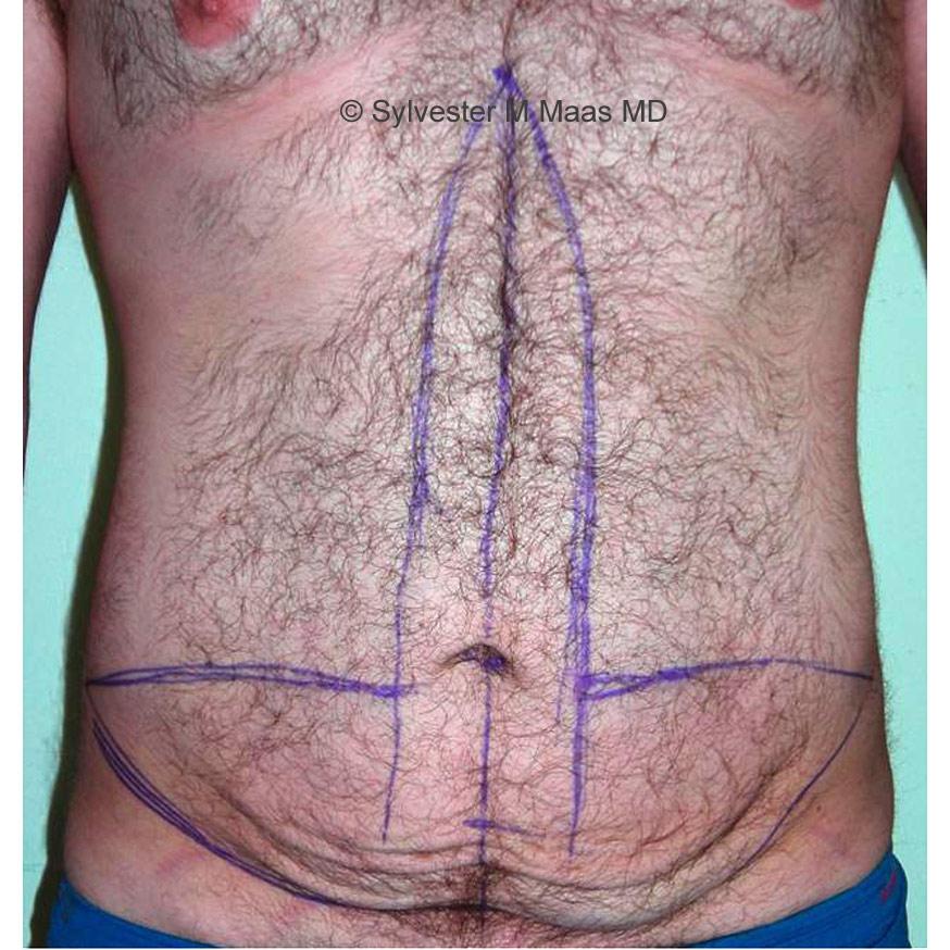 Bauch Gesenkt Vorher Nachher