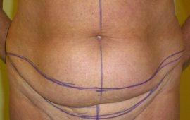 Mini-Bauchdeckenstraffung 1c vorher Bild Dr Sylvester M Maas