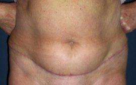 Mini-Bauchdeckenstraffung 1d nachher Bild Dr Sylvester M Maas