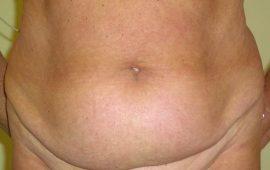 Mini-Bauchdeckenstraffung 1a vorher Bild Dr Sylvester M Maas