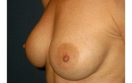 Brustvergrösserung 11e nachher Bild Dr Sylvester M Maas