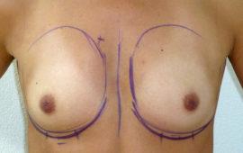 Breastaugmentation-46d-pre-op-maas-aesthetics.ch