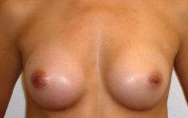 Brustvergrösserung 46e Nachher Bild Dr Sylvester M Maas