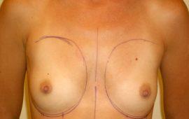 breataugmentation 6g preop Dr Sylvester M Maas