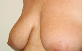 breastreducion-12b-preop-plastic-surgery