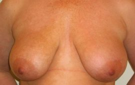 breastreduction-12a-preop-plastic-surgery