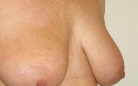 breastreduction-12c-preop-plastic-surgery
