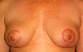 breastreduction-12d-porstop-plastic-surgery