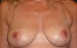 breastreduction-16d-postop-plastic-surgery