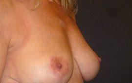 breastreduction-16e-postop-plastic-surgery