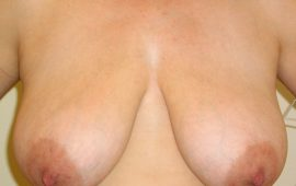 breastreduction-4a-preop-plastic-surgery