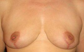 breastreduction-4b-postop-plastic-surgery