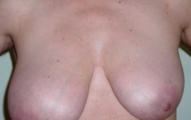 breastreduction-7a-preop-plastic-surgery