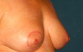 breastreducton-12f-postop-plastic-surgery