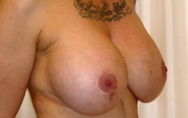 Brustimplantat Entfernung 1c Vorher Bild Dr Sylvester M Maas