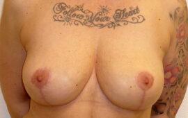 Brustimplantat Entfernung 1g Nachher Bild Dr Sylvester M Maas