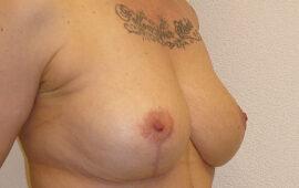 Brustimplantat Entfernung 1i Nachher Bild Dr Sylvester M Maas