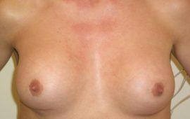 Brustimplantat Wechsel 1a vorher Bild Dr Maas