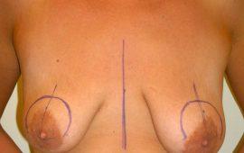 Bruststraffung 1b vorher Bild Dr Sylvester M Maas