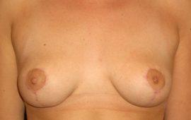 Bruststraffung 1d nachher Bild Dr Sylvester M Maas