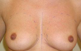 Brustvergrösserung 2a vorher Bild Dr Sylvester M Maas