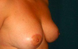 brustverkleinerung-10-f-nachher-plastische-chirurgie