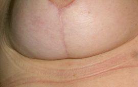 brustverkleinerung-13f-nachher-plastische-chirurgie