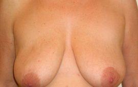 brustverkleinerung-14a-vorher-plastische-chirurgie