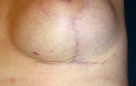 brustverkleinerung-14h-postop-plastische-chirurgie
